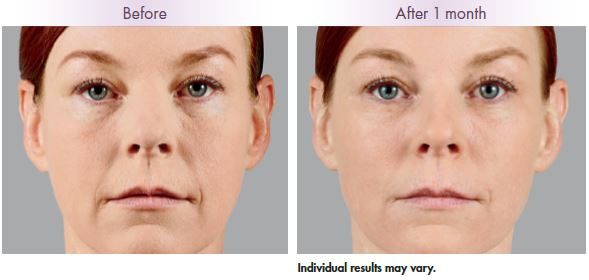Juvederm Voluma Clearwater