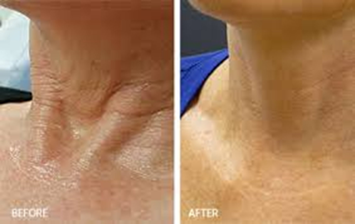 Acne treatment with sperm in face 6