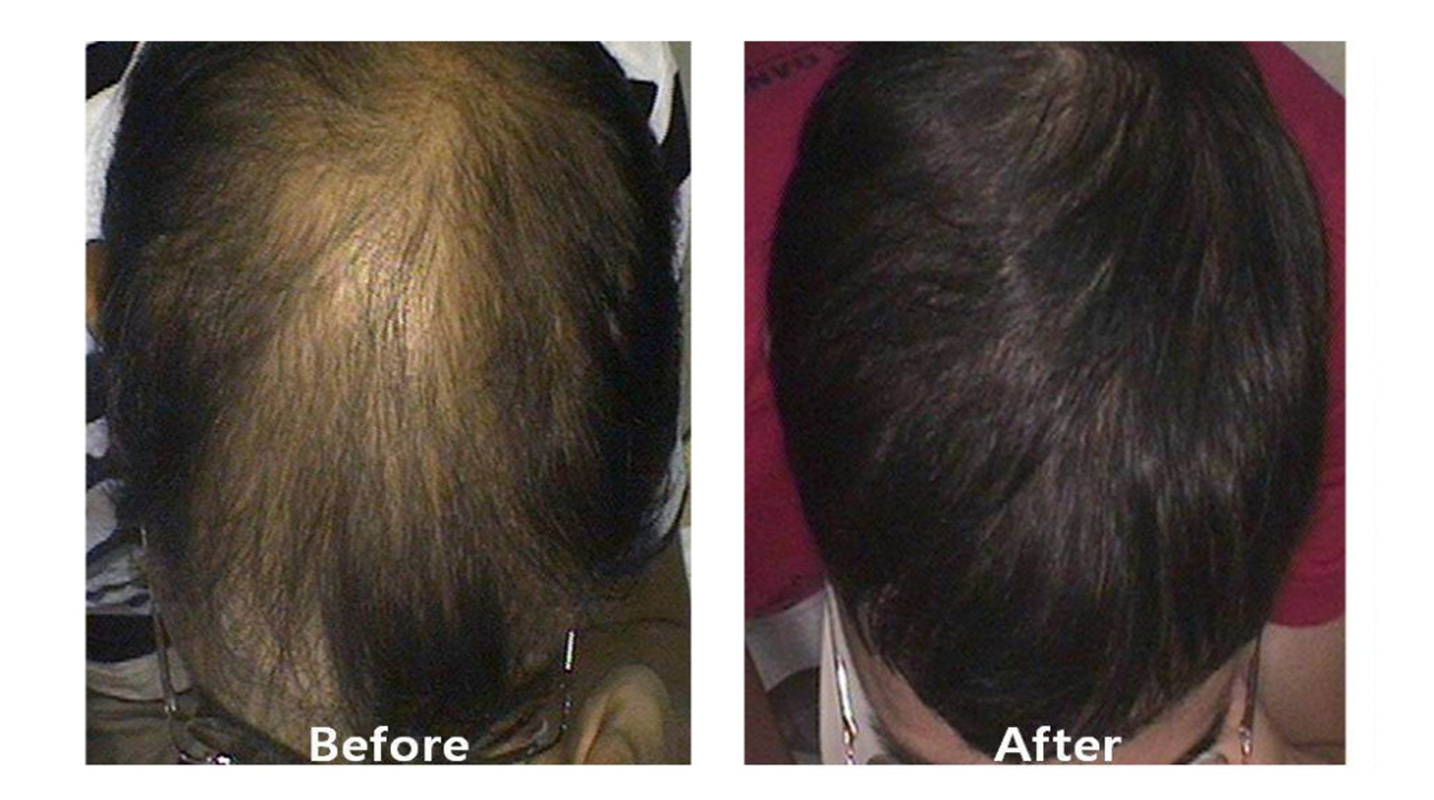 Benefits of PRP Hair Injections