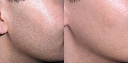 Remove Unwanted Hair Forever with Electrolysis   Red Bamboo